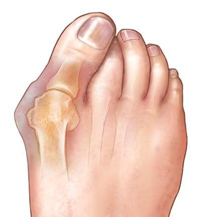 tratament pentru articulatii tratamentul hemartrozei genunchiului 1 grad